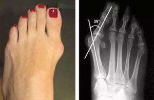 Деформация большого пальца ноги